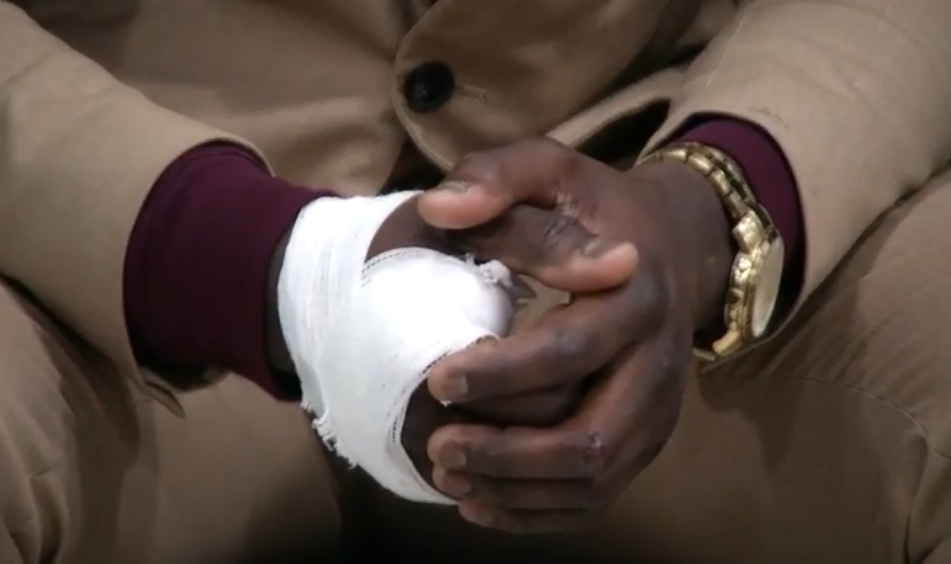 James Shaw hand injury. PHOTO: FOX 17 News