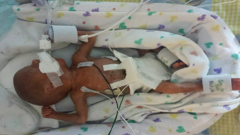 Identical twins could be born up to 4 months apart