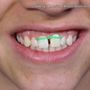 On Your Side: Orthodontists call DIY braces a dangerous trend