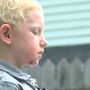 Mother asks for help, offers advice after 5-year-old son was bitten at dog park