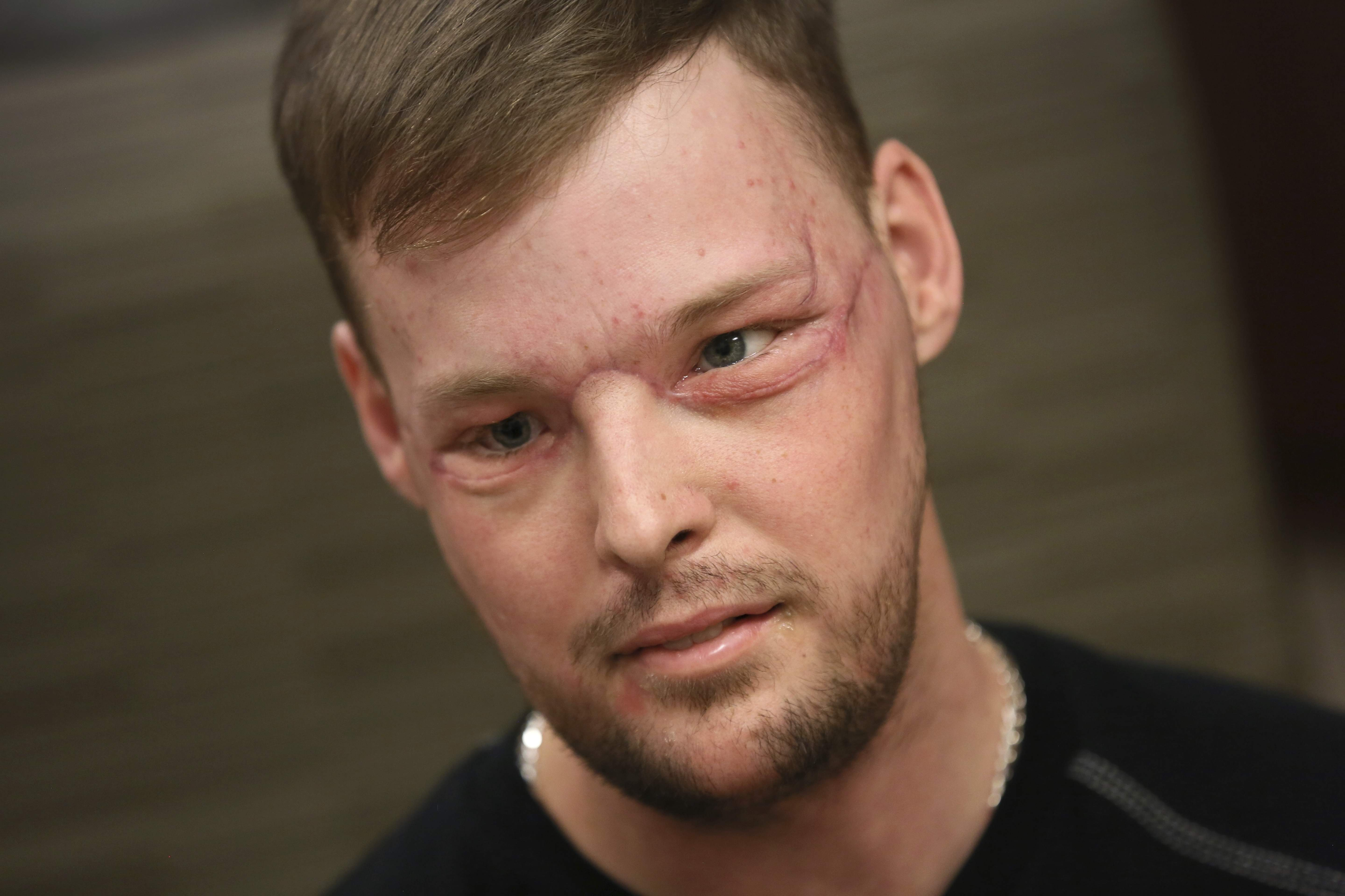 In this Jan. 24, 2017, photo, face transplant recipient Andy Sandness attends a speech therapy appointment at Mayo Clinic in Rochester, Minn. He wasn't allowed to see himself immediately after the surgery. His room mirror and cell phone were removed. When he finally did see his face after three weeks, he was overwhelmed. 'Once you lose something that you've had forever, you know what it's like not to have it. ... And once you get a second chance to have it back, you never forget it.' Just having a nose and mouth are blessings, Sandness says. 'The looks are a bonus.' THE ASSOCIATED PRESS