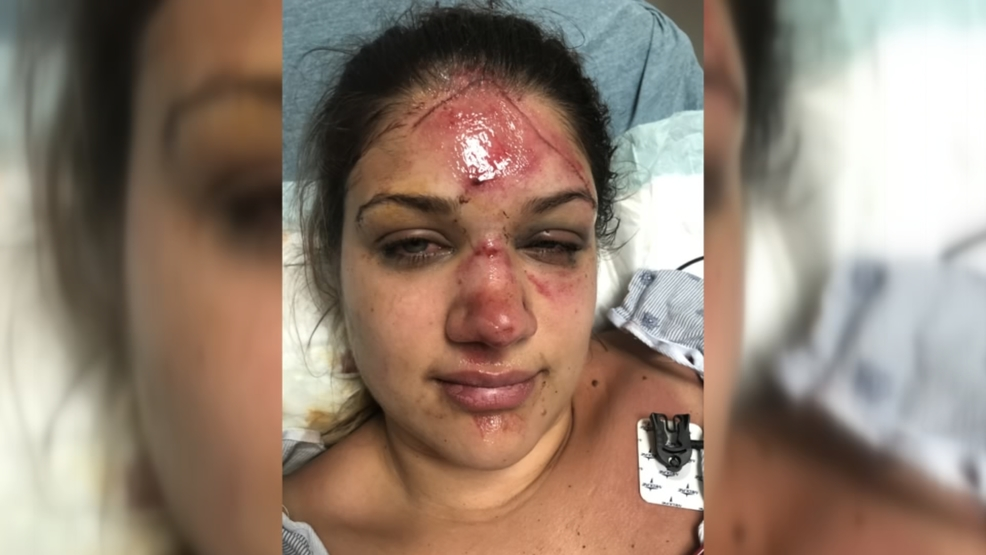 Family of woman attacked viciously while tubing searching