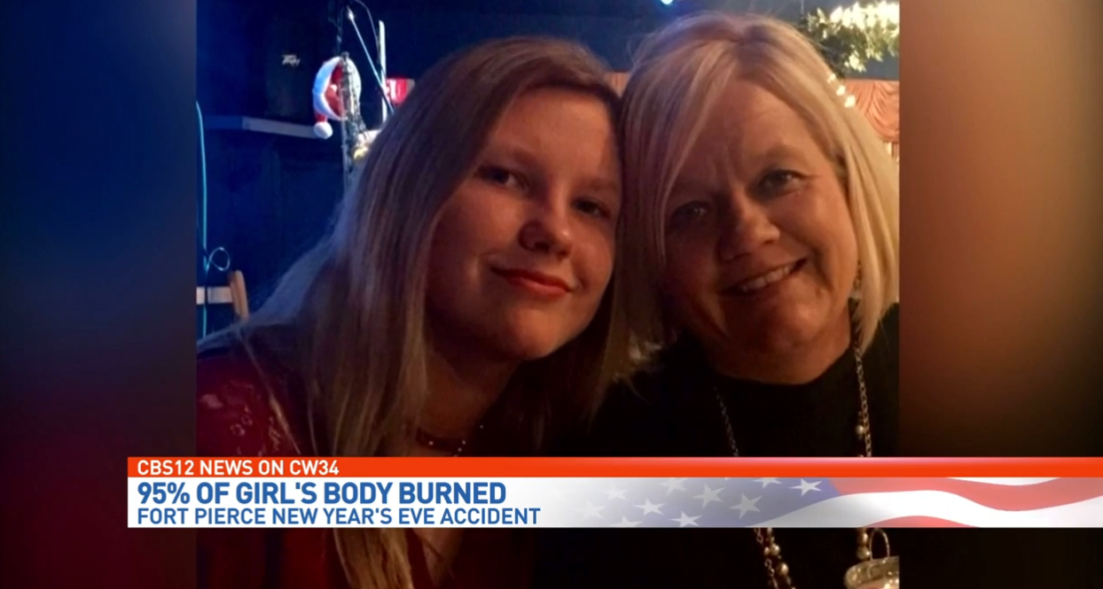 Teenage girl severely burned, fighting for life. (WPEC)