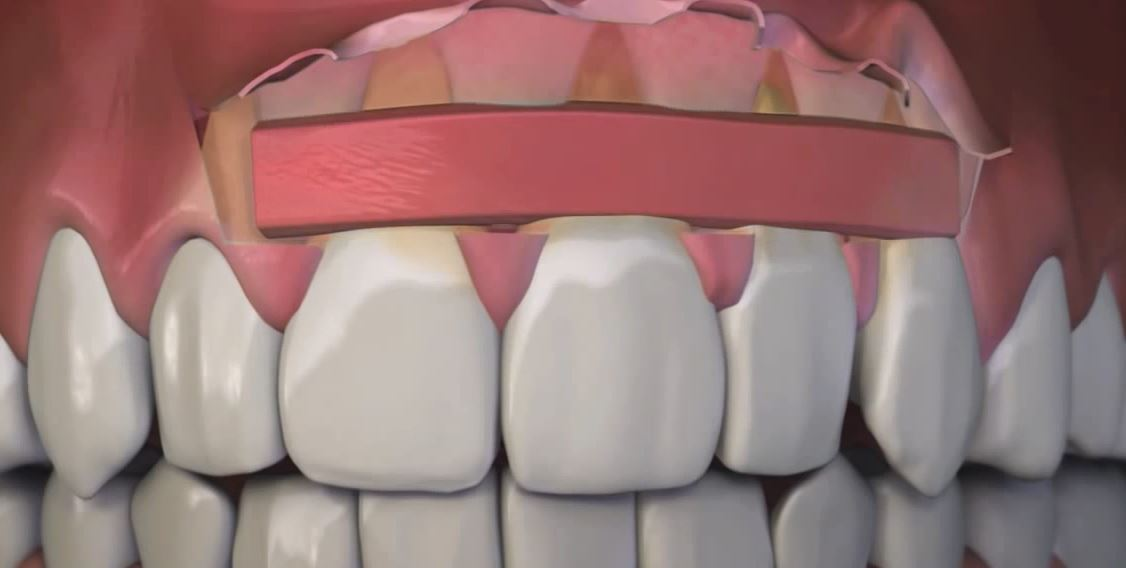 Before pinhole surgery, fixing receding gums required more invasive techniques that required sutures, bleeding and swelling. (Dr. John Chao)<p></p>