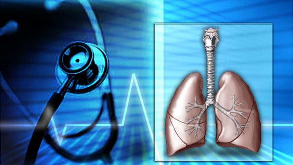 Centra Health Offers Lung Cancer Screenings In Hopes To Detect Early